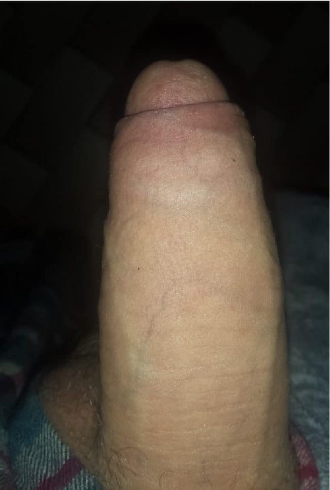 Soft Cock